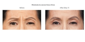 Botox Before and After 2 | Burbank Botox Injections